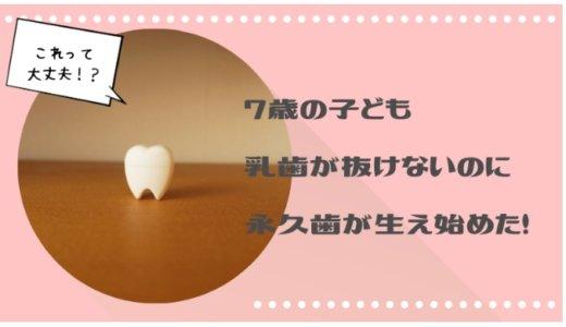 乳歯が抜けないのに、後ろから永久歯が生え始めた。これって大丈夫なの?